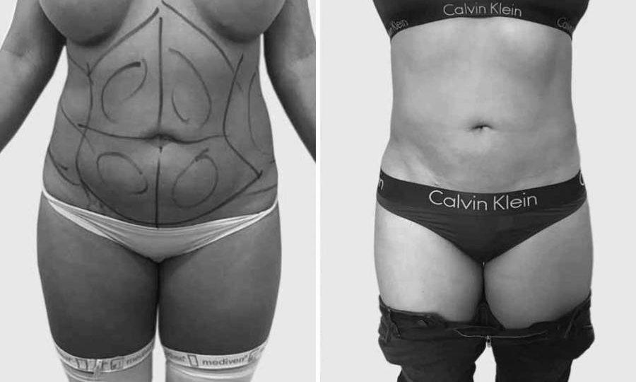 CAZ #1 - Liposuctie abdominala inainte si dupa operatie (poze frontale)