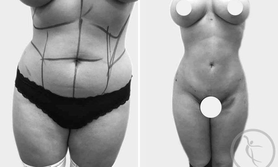 CAZ #2 - Lipoaspiratie abdominala inainte si dupa operatie (poze frontale)
