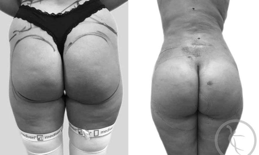 CAZ #2 - Lipoaspiratie flancuri inainte si dupa operatie (poze spate)