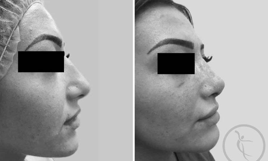 CAZ #4 - Rinoplastie (operatie corectie nas cu ridicare varf)