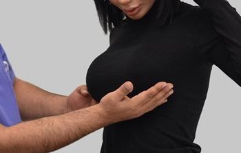 Lifting mamar - operatie de ridicare sani