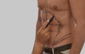 Lipoaspiratie - operatie liposuctie