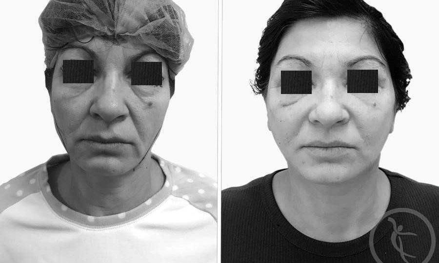 CAZ #1 Lifting facial si blefaroplastie completa (poze frontal)
