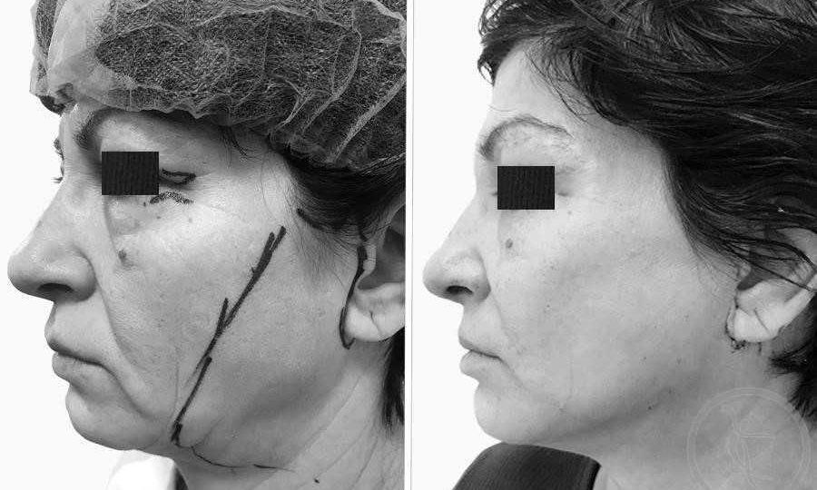 CAZ #1 Lifting facial si blefaroplastie completa (poze lateral)