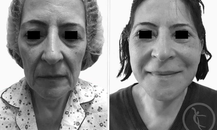 CAZ #2 Lifting facial total (poze inainte si dupa operatie)