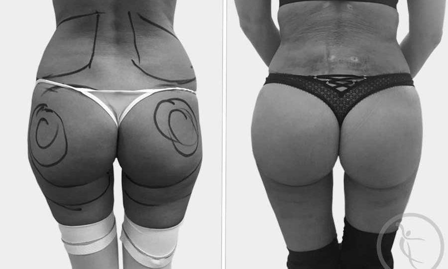 Liposuctie: Poze inainte si dupa operatii - Art Estetica by