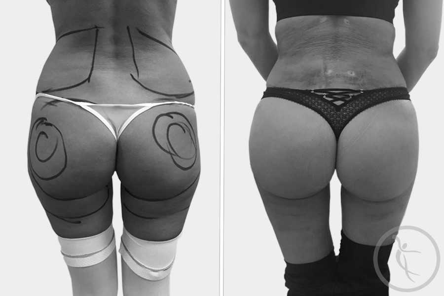 CAZ #5 Liposuctie coapse si solduri cu implant de grasime in fese (spate)