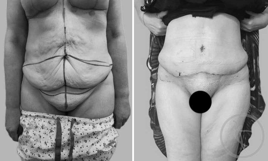 CAZ #1 Abdominoplastie totala cu mutare de ombilic
