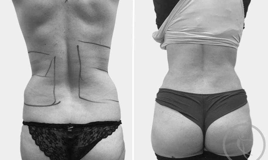 CAZ #10 Liposuctie spate si flancuri inainte si dupa operatie