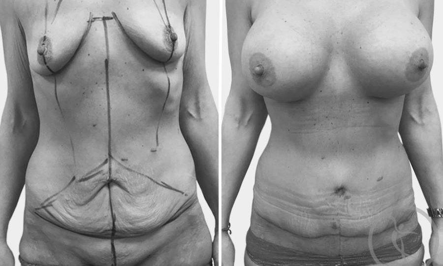 CAZ #4 Abdominoplastie si implant mamar din silicon