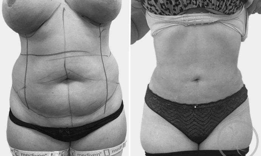 CAZ #9 Liposuctie clasica abdominala