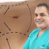Abdominoplastie dupa cezariana