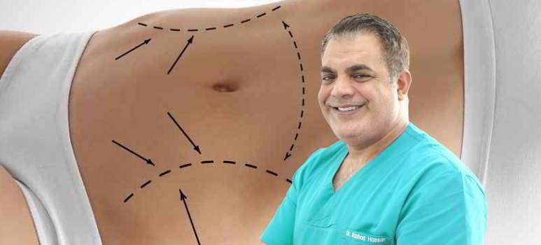 abdominoplastie-dupa-cezariana.jpg