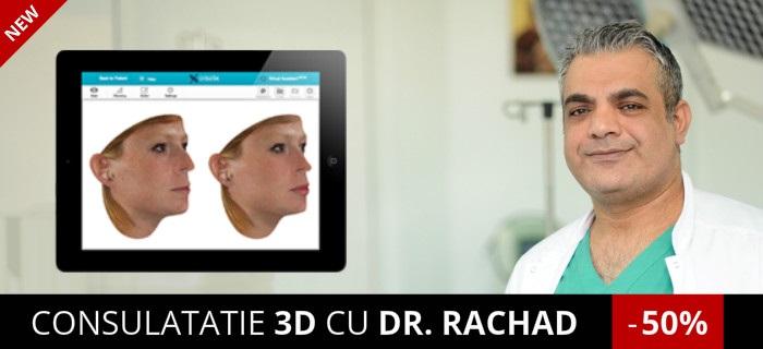 Consultatie 3D Rinoplastie