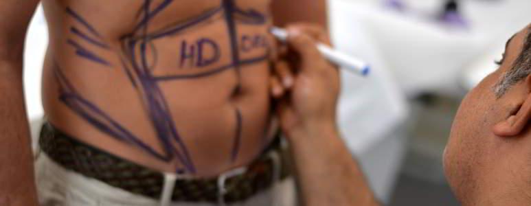 liposuctie-abdominala-barbati.jpg